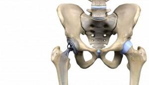 kalca protezi kullanim suresi