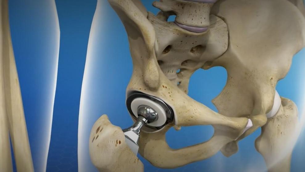 kalça protezi çeşitleri
