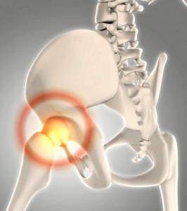 kalça protezi tedavisi