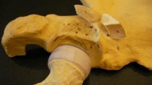protez ameliyatı